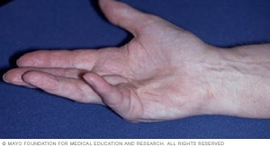 Dupuytren's Contracture pic
